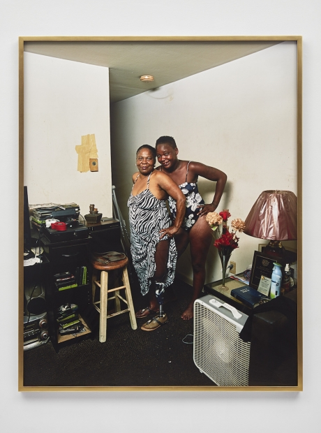 A color photograph shows two Black women posing together in cluttered living space. One raises her zebra-print dress to expose a prosthetic leg. The other is in a floral swimsuit. Both have their hair pulled back and smile toward the viewer.